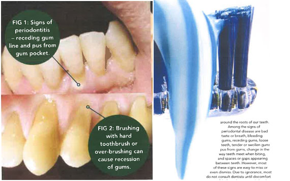 Feeling glum about gum disease?
